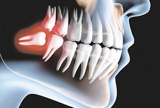 Aspectos importantes na extração de Dentes Inclusos