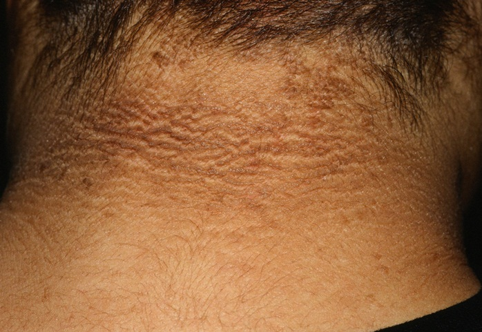 acanthosis nigricans cauze tratament