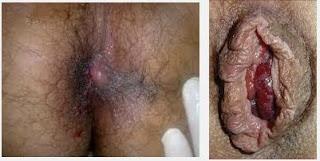 Hemoroid Obat Wasir