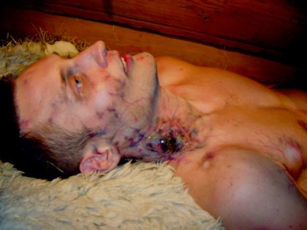 Death Internal Bleeding Internal And External Bleeding