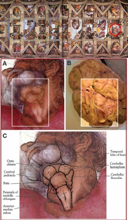 Sistine Chapel: Another Human Brain Seen From Below