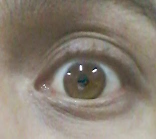 Terapi Mata Dengan Otem