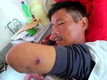 A Scrub Tifus patient at Mirik Hospital.