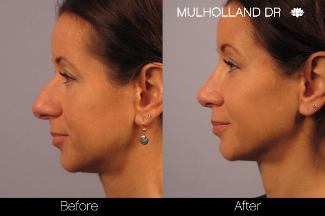 Before and after rhinoplasty in Toronto