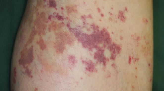 6. Purpura Dermatosis