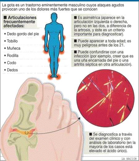 las conservas elevan el acido urico medicina mexicana para la gota es malo el acido urico