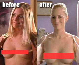 Injectable boob job