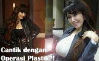 Artis Indonesia Yang Operasi Plastik | Fenomena Operasi Plastik | Fakta Seputar Bahaya Operasi Plastik