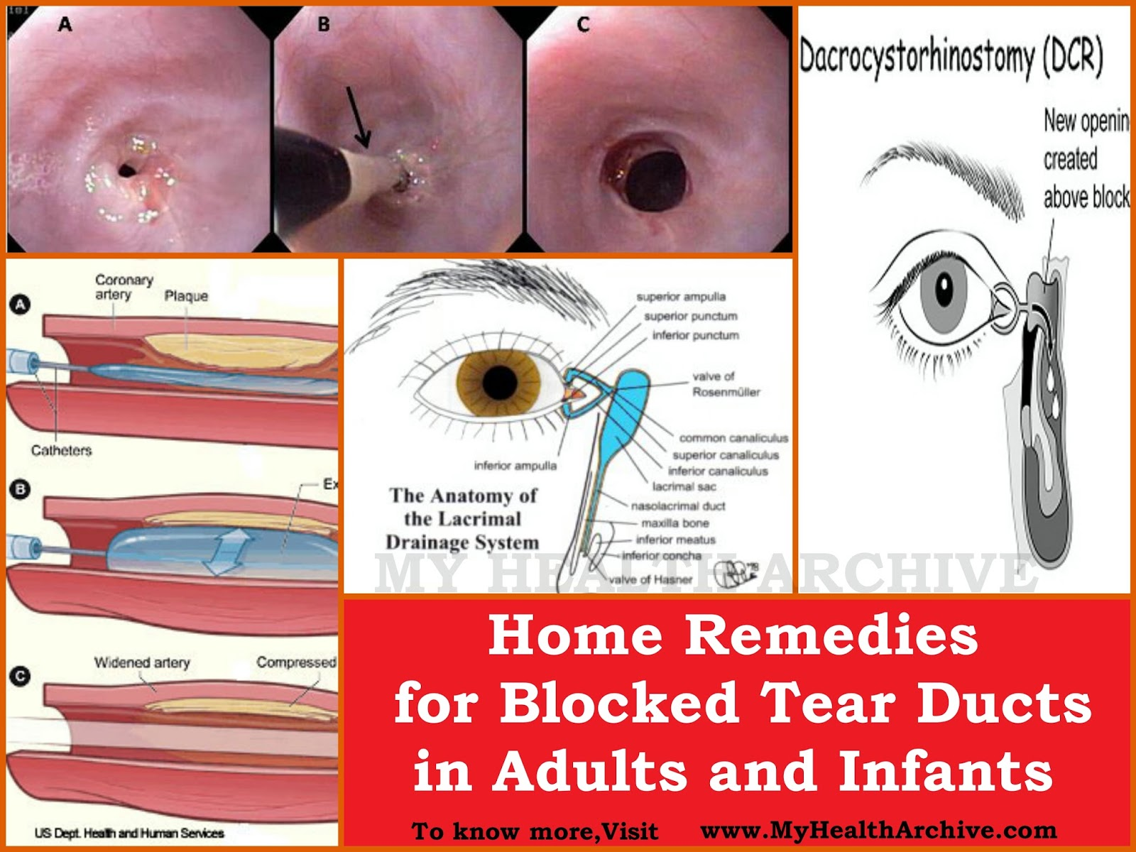Remedies for Blocked Tear Ducts in Adults and Infants