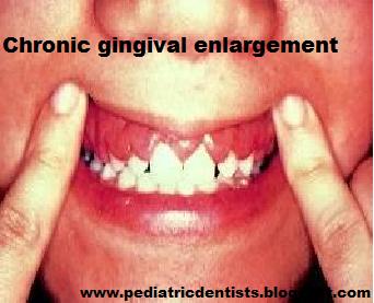 Dental Implants - Capital Oral Facial Surgery