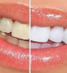 Cara Mudah Membersihkan Karang dan Gigi Yang Kuning