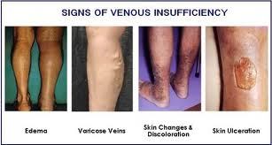 chronic venous insufficiency treatment