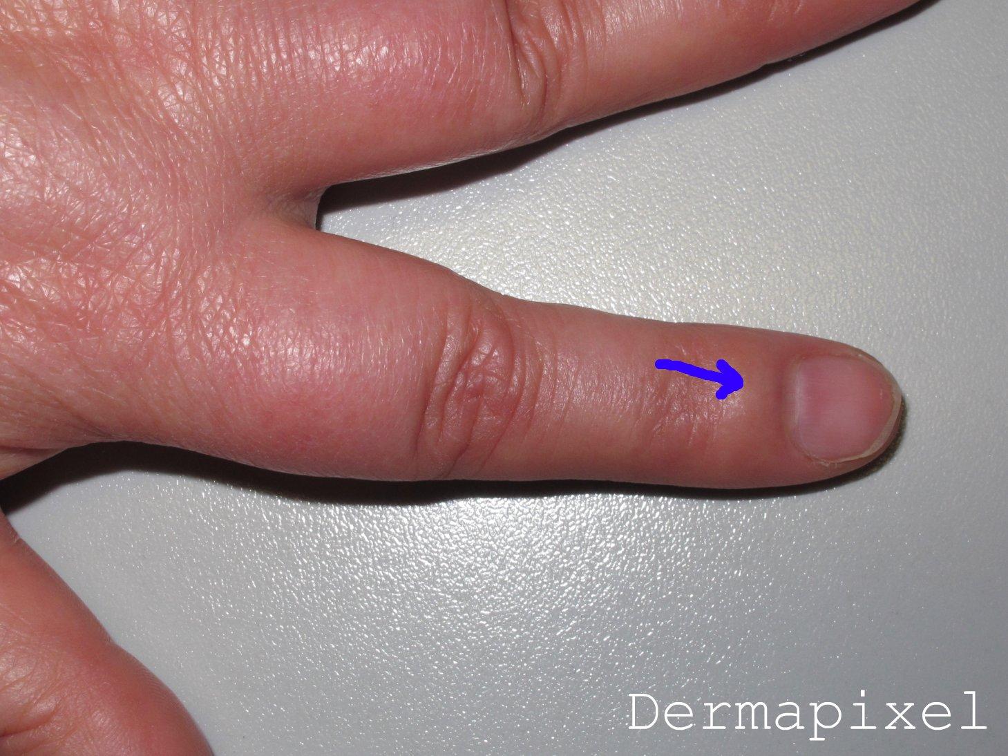 Dermapixel: Me duele la uña (y no se ve nada). I Concurso Dermapixel