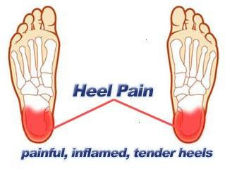 Remedy for foot pain from high heels