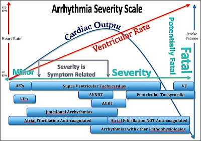 Arrhythmia Scale