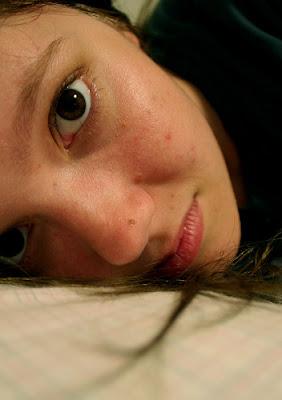 medicalshow blog TIPS TO GET RID OF THOSE UGLY BLEMISHES.