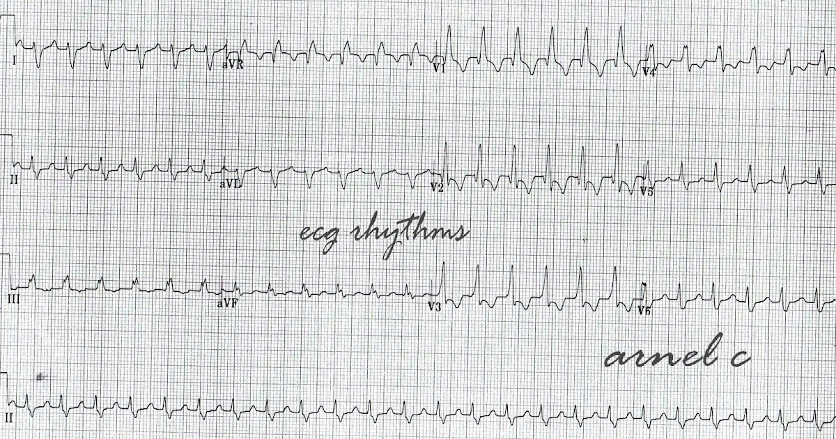 ECG Rhythms: There is a reason to check the initiation of a tachycardia