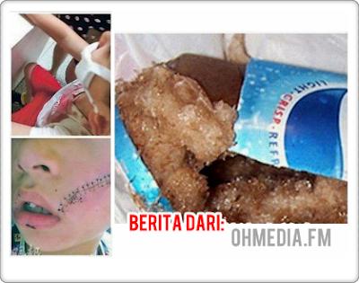 Punca Dilarang Letak Air Tin Dalam Peti Ais Tempat Beku Terjawap