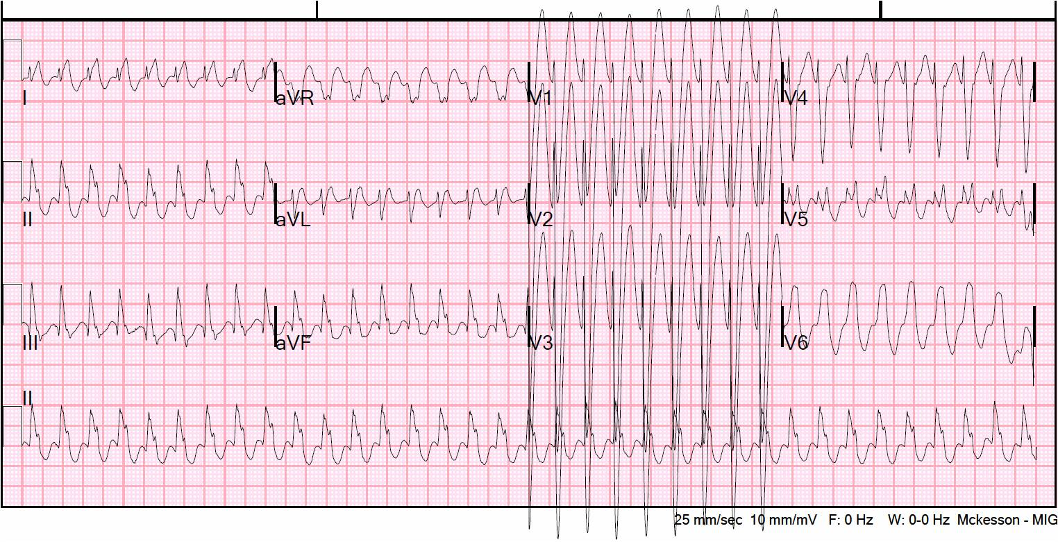 What Is Svt >> Dr Smith S Ecg Blog Wide Complex Tachycardia Ventricular