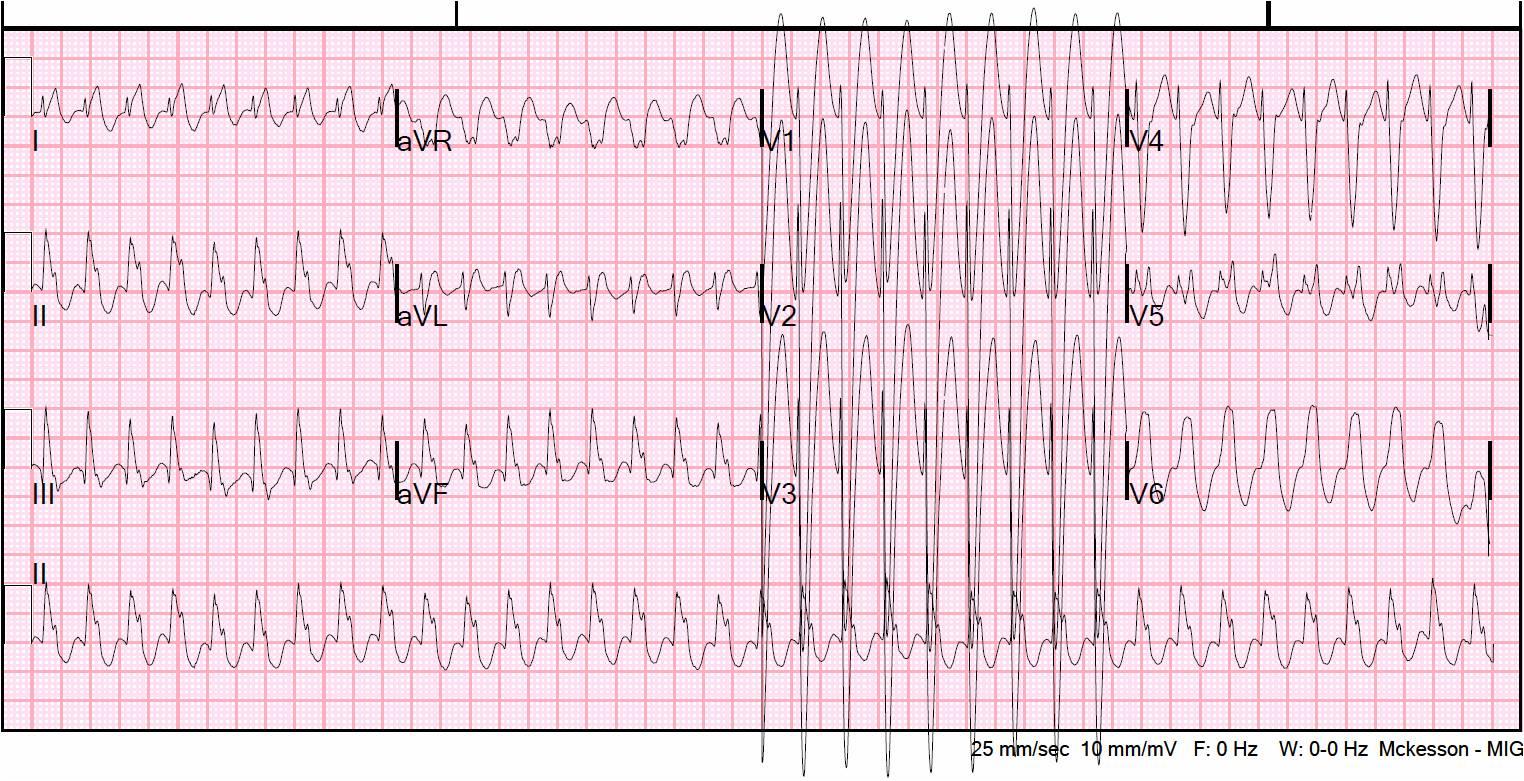 Paroxysmal Atrial Tachycardia Vs Sinus Tachycardia