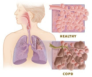What Is COPD, COPD Symptoms, COPD treatment, COPD Stages, COPD Disease, Asthma COPD, COPD Pathophysiology, COPD Etiology, COPD Sign Symptoms, COPD Guidelines, COPD life expectancy