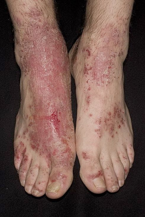 enfermedades de la piel imagenes