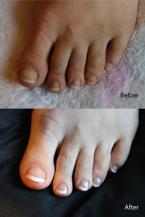 Tried Tested Shellac French Pedicure Ema S Beauty Blog