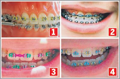 Pendakap gigi murah jadi penyebab kanser usus