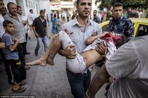 ইসরাইল আন্তর্জাতিক আইন লঙ্ঘন করছে: জাতিসংঘ