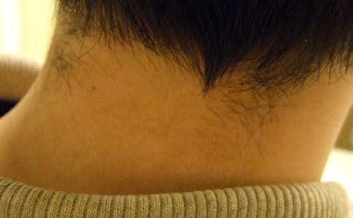 mengatasi ketegangan otot leher