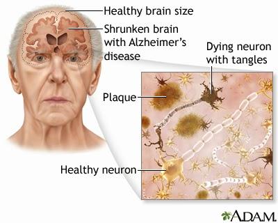 Cara Pengobatan Penyakit Alzheimer