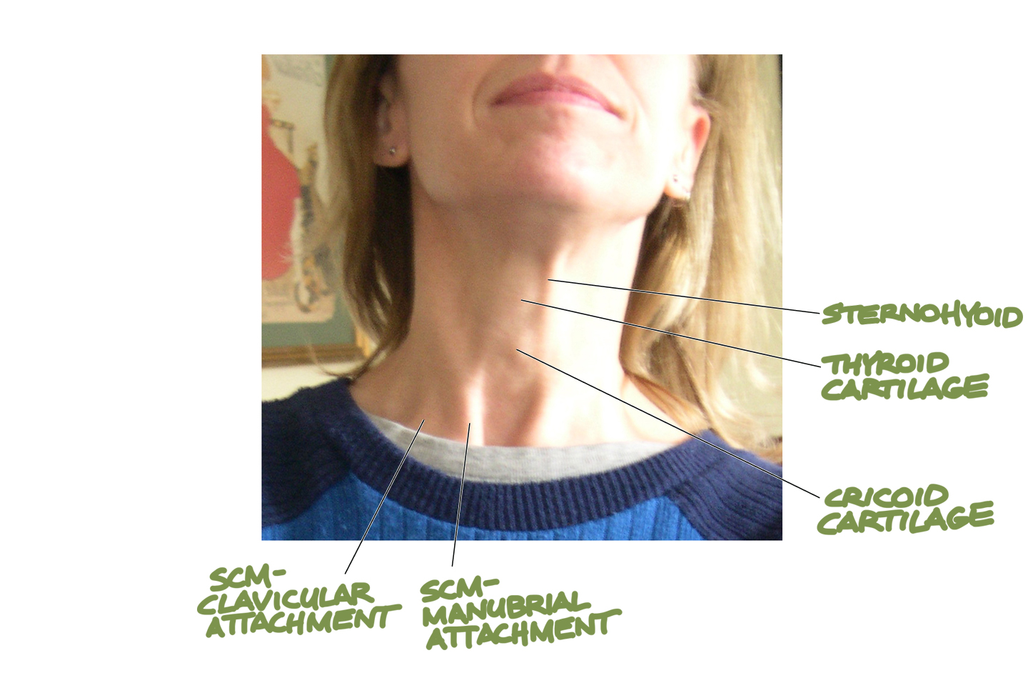 Human Anatomy for the Artist: The Anterior Neck: Theme and Variations