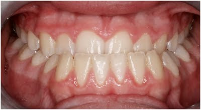 How To Fix An Underbite http://drellisonline.blogspot.com/2011_05_01_archive.html