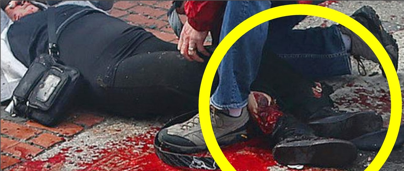 Fake Blood Caught On Tape Boston Marathon Hoax Injuries ...