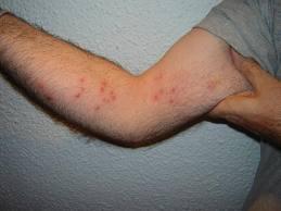 animales inyectados con esteroides