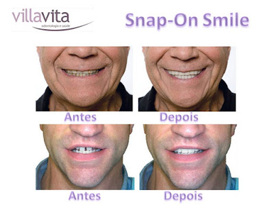 Slide4 - Snap-On Smile: O sorriso de Hollywood