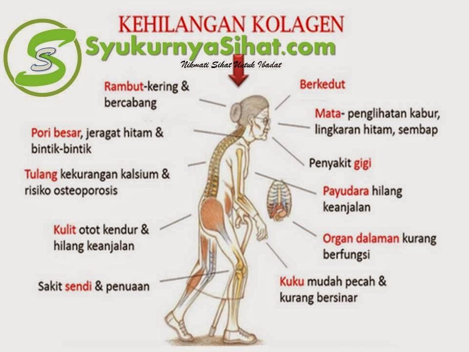 Kesan kehilangan kolagen