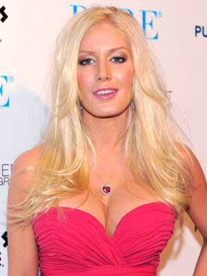 heidi montag before and after 2011. heidi montag 2011 news.