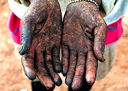 Brasil: Acordo com siderúrgicas visa combater desmatamento e trabalho escravo
