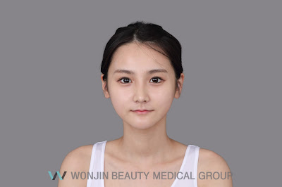 Best Korean Rhinoplasty, Dorsal Augmentation