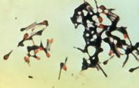 Pengertian Bakteri Aerob & Anaerob Serta Perbedaannya