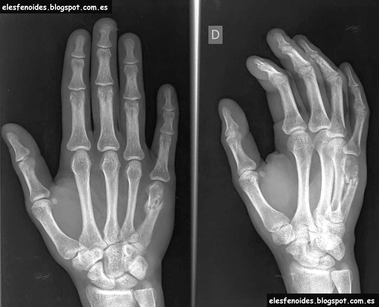 El esfenoides: Fractura del boxeador. 2 imágenes 1 caso.