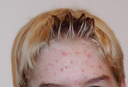 acne-wikipedia