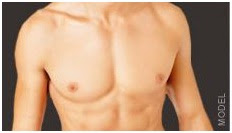 male breast reduction Los Angeles