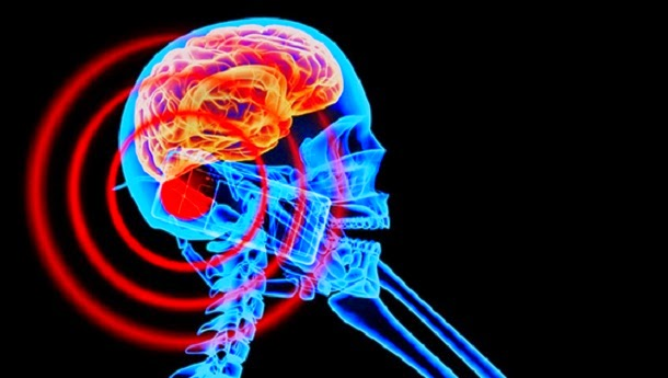 Os telemóveis causam tumores cerebrais?
