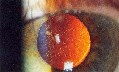 cc Rakesh Ahuja, MD. Aftercataract - Posterior capsular opacification post-cataract surgery (seen on retroillumination)