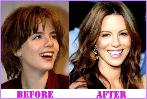 Kate Beckinsale Plastic Surgery Breast Implants Lips Before And After Photos