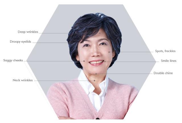 efek lifting wonjin untuk wanita berusia 40 tahunan ke atas