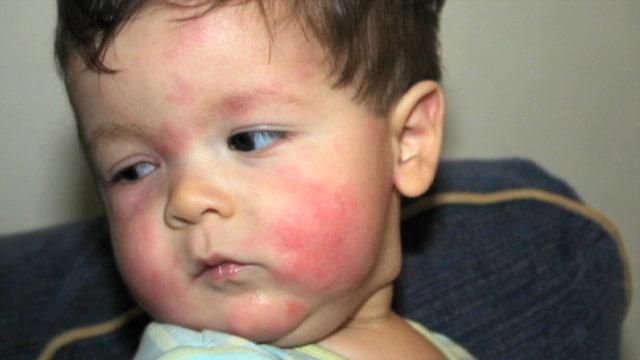 аллергия на мед у взрослых фото