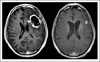 New  Discovery Help Fight Brain Cancer